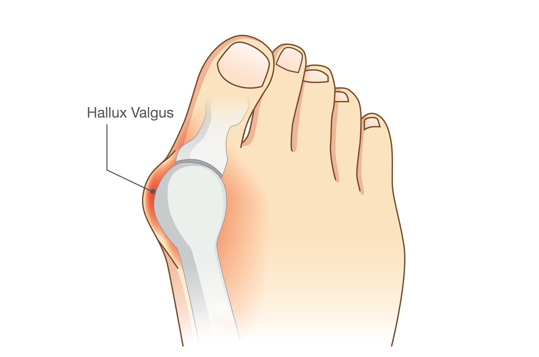 Advies bij Hallux Valgus voet