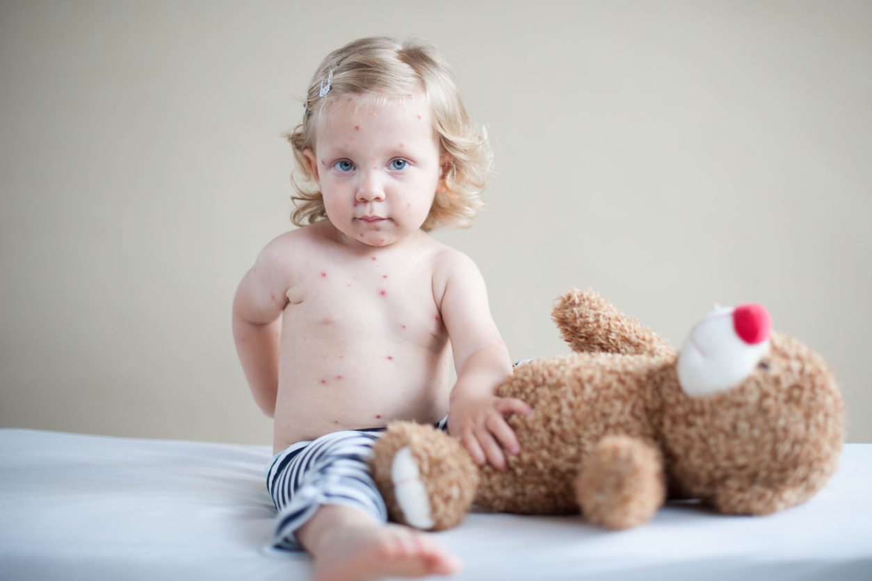 Kinderziekten bij een peuter herkennen