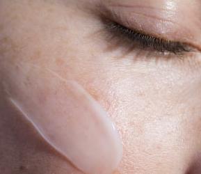 Beschadigde, geïrriteerde  huid