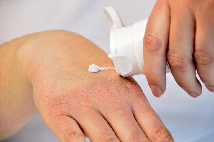 Huidverzorging bij en na radiotherapie